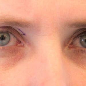 Esteettinen kirurgia - silmäluomien kohotus 4