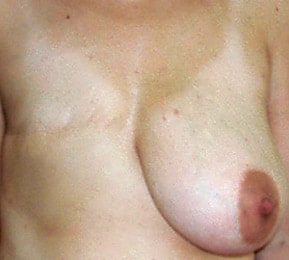 MS-TRAM before the breast reconstruction