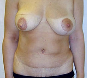 MS-TRAM after the breast reconstruction