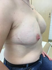 Breast reconstructions - Expander implant right side view