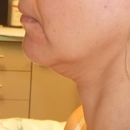 3 face lift preop