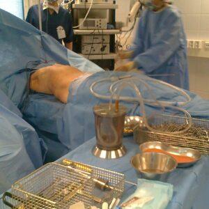 Эстетическая хирургия, Липотрансплантация 1