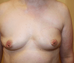 Breast conserving oncoplastic wide resection, 2 years after operation