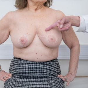 Oncoplastic resection in left breast, reductioplasty in right breast, 5 years post op