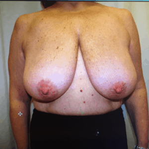 Oncoplastic resection in left breast, reductioplasty in right breast, pre op