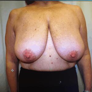 Chirurgia del carcinoma mammario