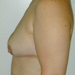 Ricostruzioni del seno - ricostruzione immediata del seno con ms-TRAM (seno sinistro), lato sinistro