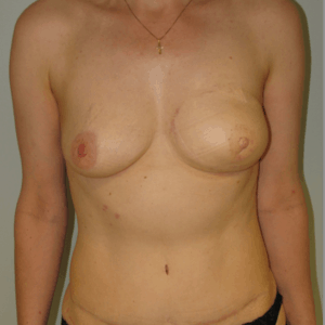postop Sensing breast