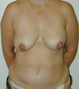 left breast