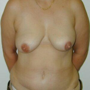 Ricostruzioni del seno - ricostruzione immediata del seno con ms-TRAM (seno sinistro)