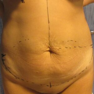 Aesthetic surgery - esteettinen abdominoplastia preop.