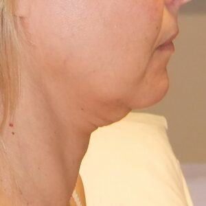 Esteettinen kirurgia - kasvojen kohotus, ennen