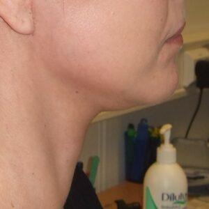 Esteettinen kirurgia - kasvojen kohotus, oikea jälkeen