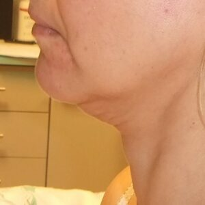 Esteettinen kirurgia - kasvojen kohotus, vasen ennen
