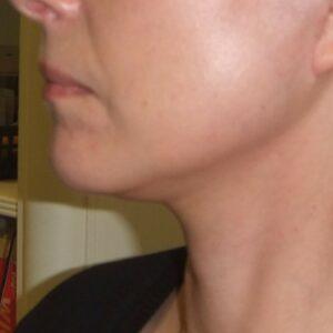 Esteettinen kirurgia - kasvojen kohotus, vasen jälkeen