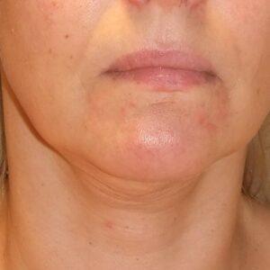 Esteettinen kirurgia - kasvojen kohotus, edestä ennen