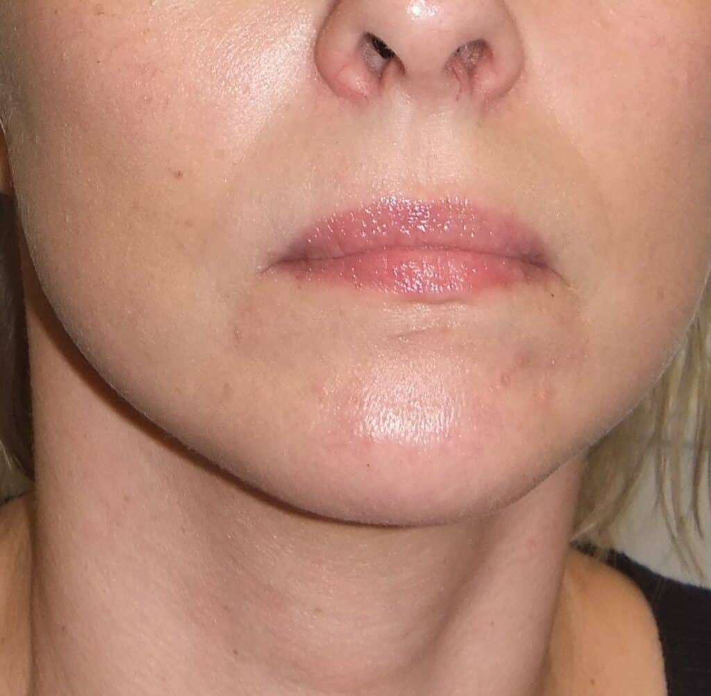 Aesthetic surgery - Face lift, front, after