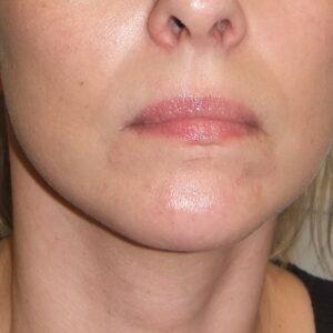Esteettinen kirurgia - kasvojen kohotus, edestä jälkeen