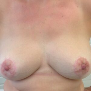 Aesthetic Surgery - Reduktioplastia Breast reduction, post op, patient 1