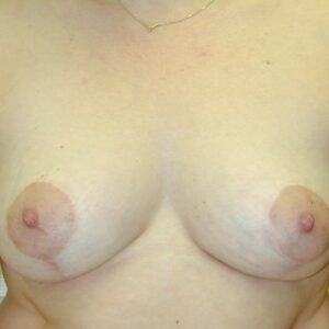 Aesthetic Surgery - Reduktioplastia Breast reduction, post op, patient 2