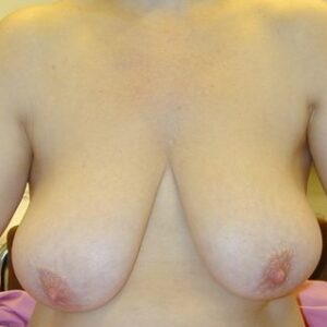 Aesthetic Surgery - Reduktioplastia Breast reduction, preop, patient 2