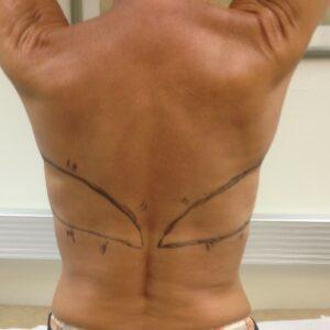 Breast reconstructions - bilateral LD