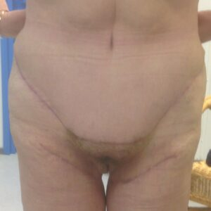 Other treatments - Post bariatric abdominoplasia + reisien korjaus