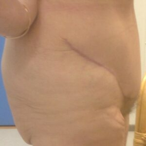 Other treatments - Post bariatric abdominoplastia 2 postop (2)