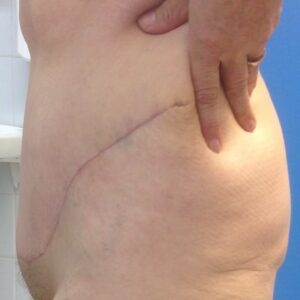 Other treatments - Post bariatric abdominoplastia postop L (2)