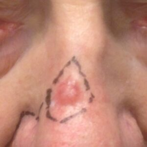 Other treatments - Basal-cell carcinoma