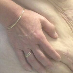 Other treatments - postbariatric syndr 2 (2)
