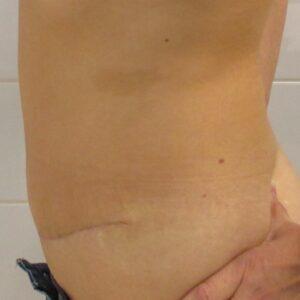 Esteettinen kirurgia - abdominoplastia, sivukuva, jälkeen