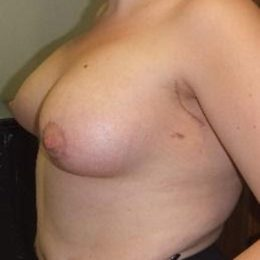Breast asymmetry correction 4