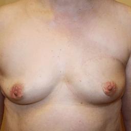 Хирургия рака груди - Органосохраняющая операция, через 2 года после операции