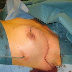 Хирургия рака груди - Органосохраняющая операция